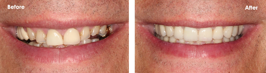 full mouth reconstruction before and after