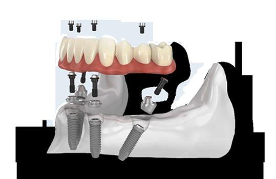 dentist, all-on-4, teeth, jaw