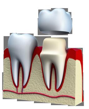 Crown, teeth, dentist