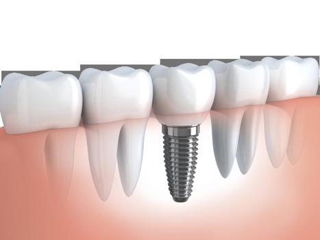 dental implants, dentist