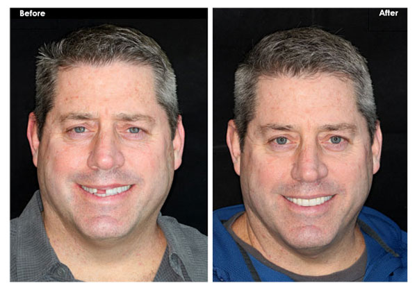 AC Bridge to Replace Missing Teeth