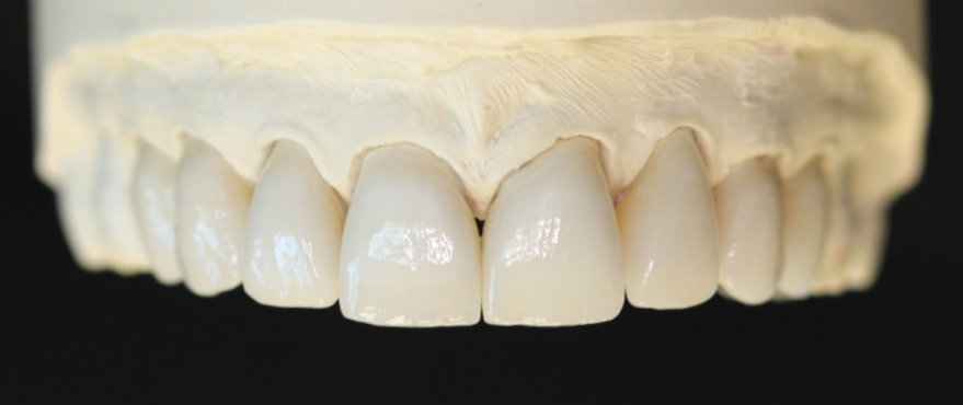 Reconstructing Chipped Teeth With All Ceramic Restorations
