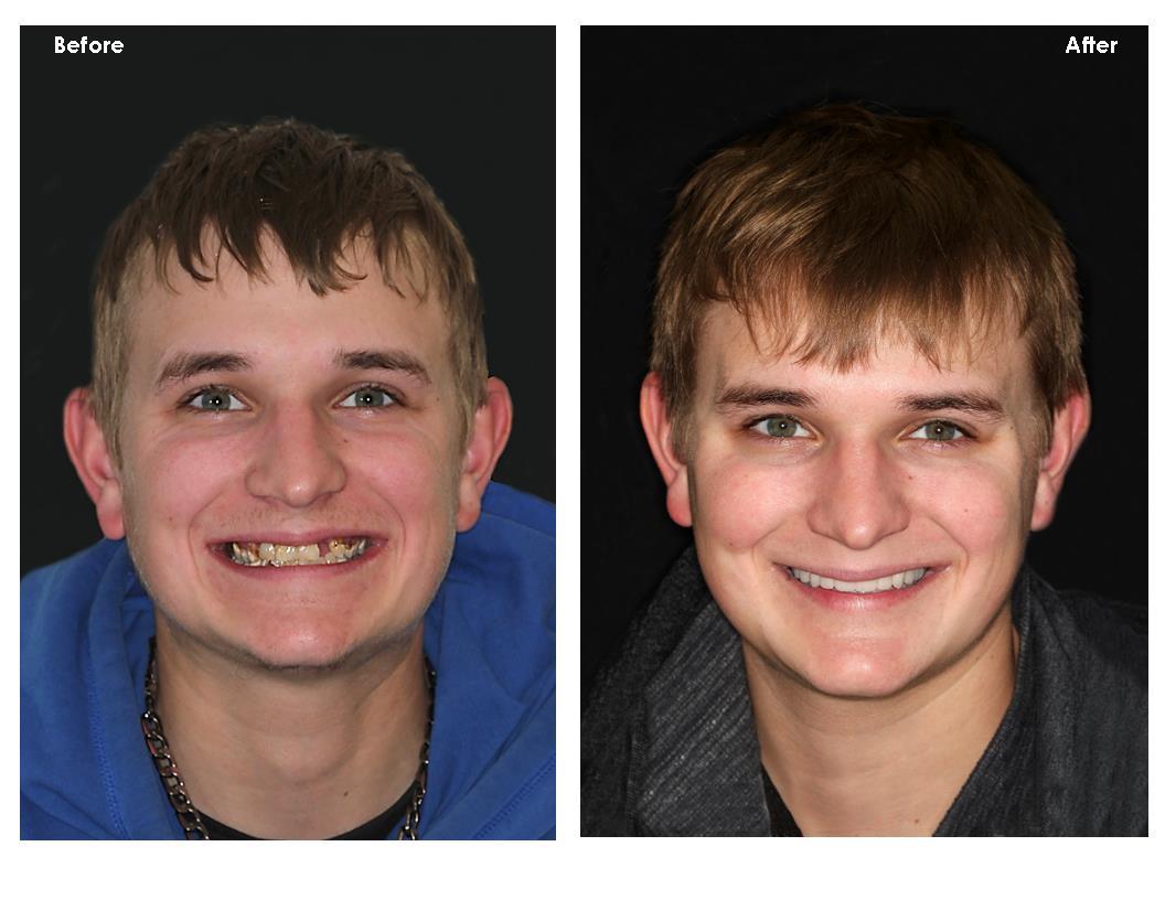 Full Mouth Reconstruction II – Minnesota Prosthodontist Dr ...