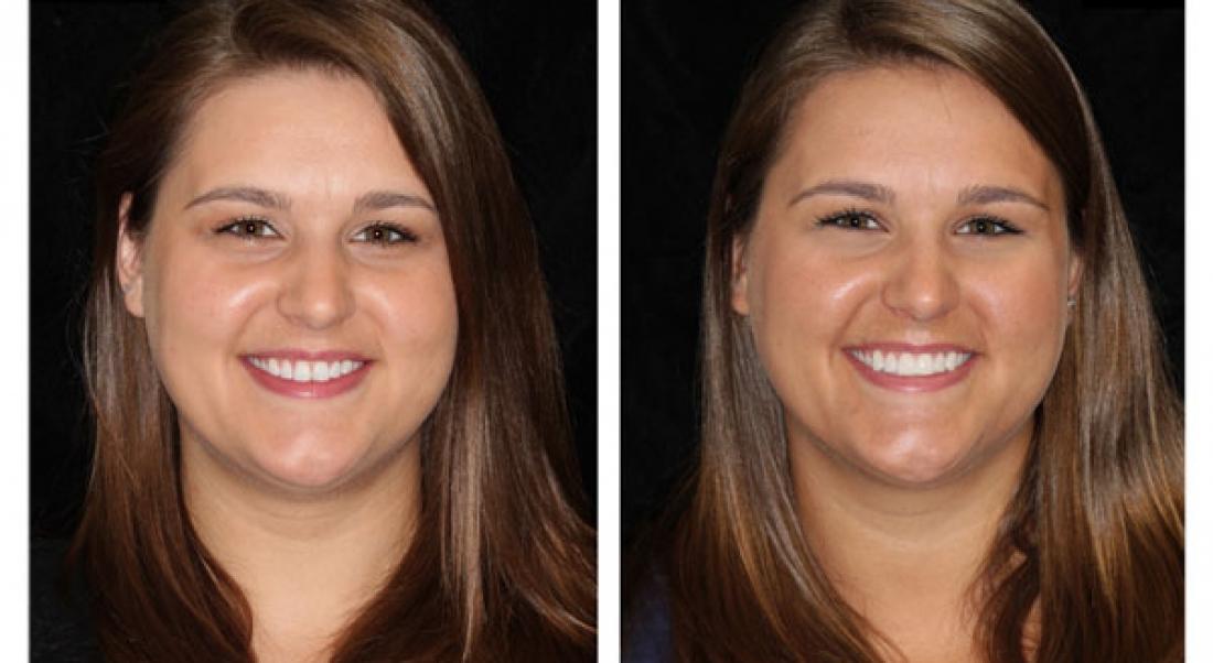 Eliminating Spaces Between Teeth