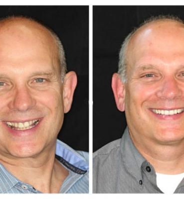 Full Mouth Reconstruction with Crowns, Implants, and a Bridge