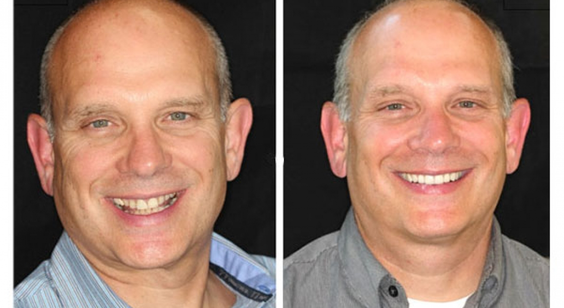 Before And After Minnesota Prosthodontist Dr Lisa James