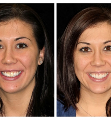 Masking Discolorations with Porcelain Veneers