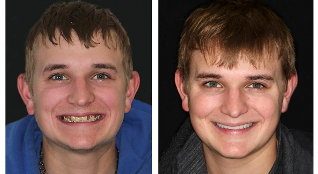 Full Mouth Reconstruction II